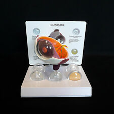 Anatomical Human Cataract Eye Disease Model - Medical Pathological Anatomy
