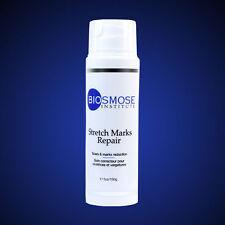 Stretch Marks Repair - Biosmose - Anti - Stretch Marks Cream & Scars, Skin Cream