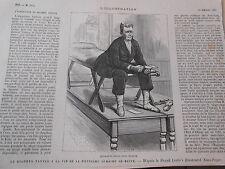 Gravure 1880 - Expérience du Docteur Tanner à la fin de sa 2ème semaine de Diète
