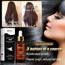 Hair Loss Fast Restoration Oil Baldness Alopecia Prevent Growth Essence Pilatory