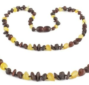 Baltic Amber Necklace Necklaces Raw Beads Cherry Anklet Bracelet