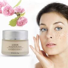 New Anti Melasma Dark Age Spots Freckle Skin Whitening Cream Lightening N5