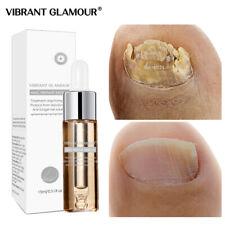 BRANTGLAMOUR Fungal Nail Treatment Feet Care Serum Nail Foot Nail Fungus Removal