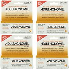 4 Pack Adult Acnomel Tinted Cream Acne Medication - 1.30 oz (36 g) Each