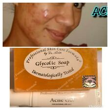 Dr. Alvin PSCF Acne Gel Glycolic Soap For Acne Pimples 100% Authentic