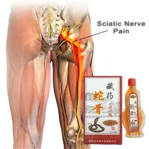 15ml Cobra Venom Sciatica Pain Relief Relieving Hyperosteogeny Treatment Oil