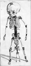 Print. 1660s.  View - Infant Skeleton