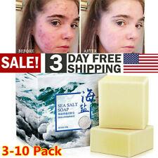 Goat Milk Sea Salt Cleaner Soap Removal Face Wash Pimple Pores Acne Skin Care