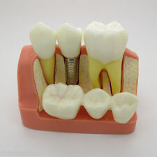 Implant Analysis Dental Crown Bridge Demonstration Teeth Model Study Model