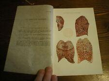 Planches/gravures science médecine La tuberculose pulmonaire planche1  an 1920