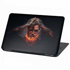 "Laptop Folie Aufkleber Sticker für 13""-17"" Zoll Skin Vinyl Notebook LP1 Fire"