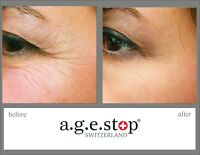 Age Stop Switzerland Powerful Competitor of Kiehls. Anti-Wrinkles Skin Care