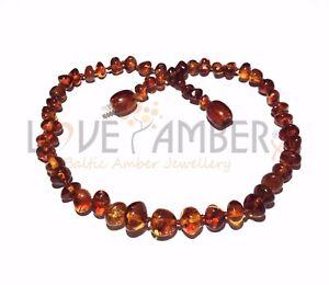 Adult BrandySnap 100% Genuine Cognac Baltic Amber Anklet Love Amber x Jewellery