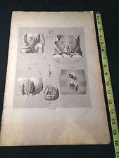 1823 10X16 Medical Engraving LAID PAPER Antonio Scarpa HERNIA Childbirth CORD