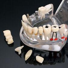 Estudio de implantes dentales Teachin Teeth Disease Modelo Restoration Bridge