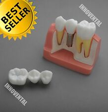 Dental Model #2017 01 - Implant Analysis Model