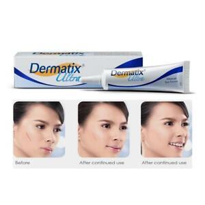 Dermatix Ultra Scar Gel Skin Care Surgery Burns Keloid Stretch Mark Treatment