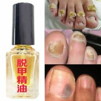 Anti Fungal Nail Treatment Toe Nail Finger Fungus Onychomycosis Thickened 5ml BN
