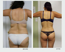 Rapid Weight Loss System 30 day Plan with Appetite Suppressant & Fat Burner