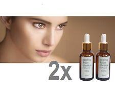 ★ 2x 30ml PEELING ACIDO GLICOLICO >> 10 20 35 50 y 70% ¡2 frascos a escoger!