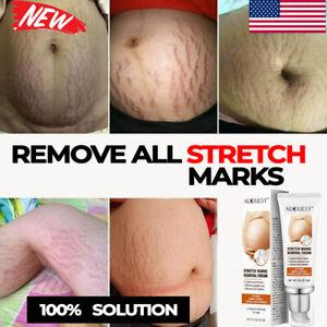 STRETCH MARKS REMOVER Essential Oil Skin Care Treatment Cream For Stretch Mark✅✅