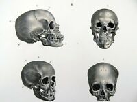 1840 Human SKULLS ANATOMY - C. Aulich hand colored FOLIO lithograph