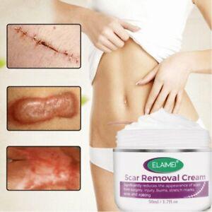Skin Rebound Scarless Cream Scar Stretch Marks Removal Cream Face Acne Repair