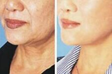 Wrinkles/Lines Mask All Skin Types Unisex Anti-Aging Products