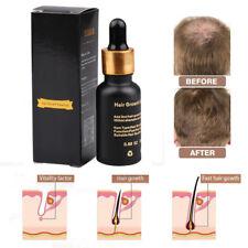 YIBER Natural Hair Growth Serum Essence Oil 20ml-Hair Fiber-Grow Hair Faster Hot