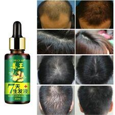 7 Days Ginger Germinal Serum Natural Essence Oil Loss Treatment Growth Hair 30ml