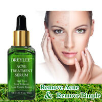Acne Treatment Serum Face Skin Scar Pimple Removal Repair Tea Tree Essence