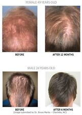 NEW Thicker Fuller Longer Stronger More Hair Growth Stimulation Laser Comb Brush