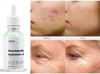 Hyaluronic Acid + Niacinamide B3 SERUM Cream, Blemish Anti-Aging, Wrinkle, Acne