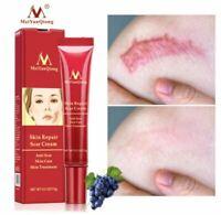 Acne Scar Removal Face Cream Acne Spots Acne Pigmentation Corrector Whitening Cr
