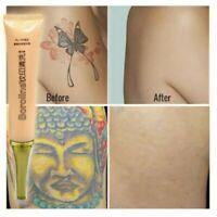 Sichere Tattooentfernung Creme unisex Schmerzfreie maximale Stärke Entferner yu
