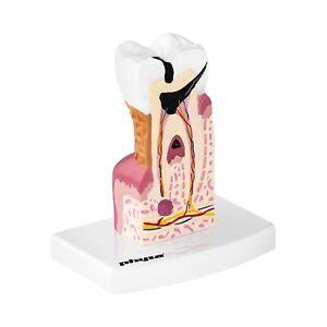 Zahnmodell Backenzahn Erkrankt 3D Modell Zahn Dental Krankheit Zahnmodell Physa