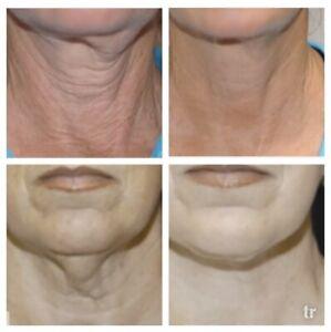 Hyaluronic Acid Cream - Anti-Aging Wrinkle Face & Eye (HA) Serum Moisturizer