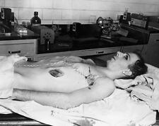 LEE HARVEY OSWALD MORGUE VINTAGE PHOTO TAKEN AFTER AUTOPSY SHOT BY RUBY #20754