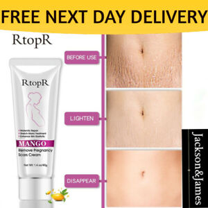 40g RtoprR Mango Pregnancy Stretch Scars Marks Remove Cream Treatment UK-SELLER