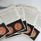 Antique Medical Book Diagnostics Of The Fundus Oculi Photographs Eye Anatomy