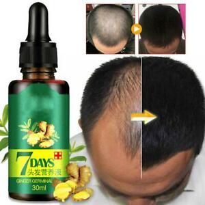 7 Days Ginger Hair Growth Essence Germinal Hair Growth Serum Essence Oil Hair