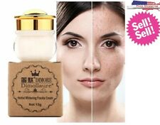 Face Whitening Melasma Cream Strong Removal  Freckle Speckle Sunburn Spots Pigme