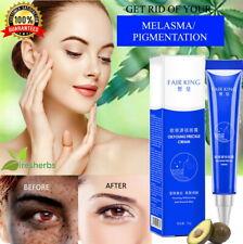 Powerful Effective Whitening Cream Melasma Acne Spots Freckles Pigmentation 20g