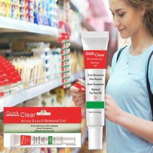 Treatment Face Cream Scar Blackhead Remover Repair Gel Oil Control Shrink Pores