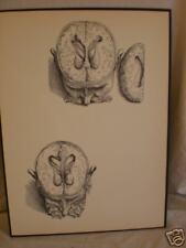 antique ANATOMICAL MEDICAL PRINT human BRAIN SURGERY