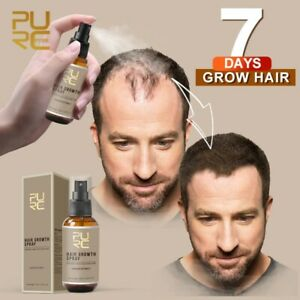PURE Natural Hair Growth Ginger Essence Loss Root Regrowth Treatment Spray