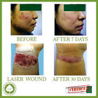 Best SCAR REMOVAL PRODUCT Cream Treatment For SCARS, INJURY, SURGERY, BURN