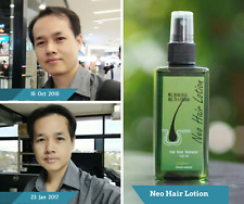 Neo Lotion Grow Hair Spray Fast and hair roots Nutrients Reduce fine Hair Loss