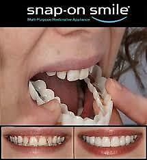 Snap On Smile - Instant Charming Smile Removable Veneers