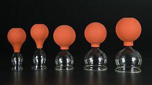 5er Schröpfset 25-60mm m. Ball,Schröpfglas,Schröpfgläser Original Lauschaer Glas